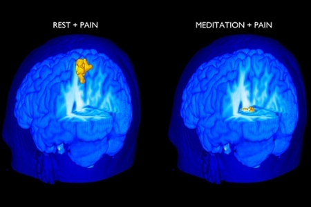 Images of Mindfulness effect on Pain